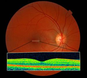 OCT normal retina macula