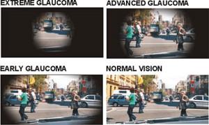GlaucomaTunnelvision4